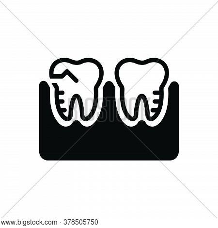 Black Solid Icon For Molar-silhouette Treatment Orthodontics Prosthesis Mouth Teeth Toothache Cheekt