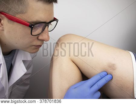 The Vascular Surgeon Examines The Outer Thigh Where The Varicose Veins Are Present. Preparation For