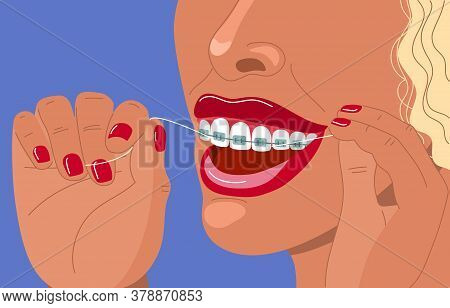 Cute Blonde Young Woman With Braces Uses Dental Floss. Daily Dental Care. Correction Of Bite And A B