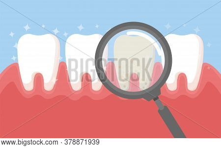 Tooth With Magnifying Glass. Dentistry Clean White Tooth And Dentistry Instruments.oral Hygiene, Tee