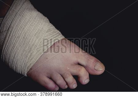 Close-up Of The Male Foot With Superimposed Time Bandage At Fracture And Ligament Tension. Right Leg