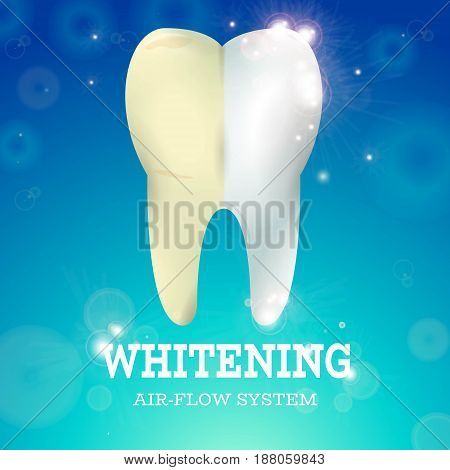 Tooth Whitening Logo Air Flow System, Medical Conception f Tooth Clinic.Dental plaque, Clean Tooth White Enamel on Blur Blue Sparkling Background glowing dots, abstract sparkling circles, shining bubbles