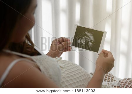 Young pregnant woman looking at ultrasound scan of baby