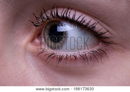Teenage girl's eye looking side on her young face