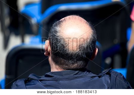 Big bald patch on a man's head .
