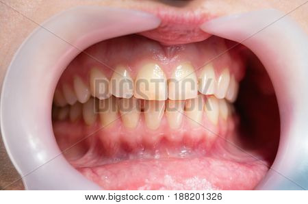 Close up of woman's teeth in dental clinic