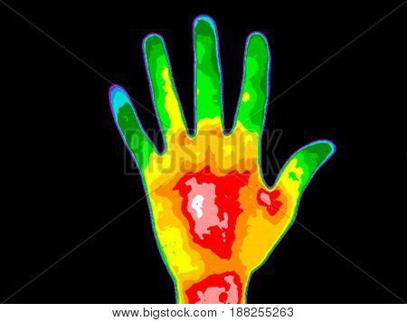 Thermographic image of the palm of a persons hand with the photo showing different temperature in a range of colors from blue showing cold to red showing hot which can indicate joint inflammation. Red heat in the palm can indicate diabetes.