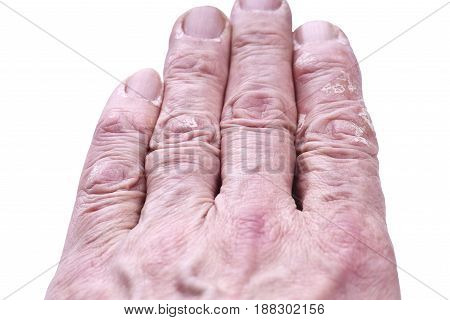 Psoriasis skin disease on the joints of the body