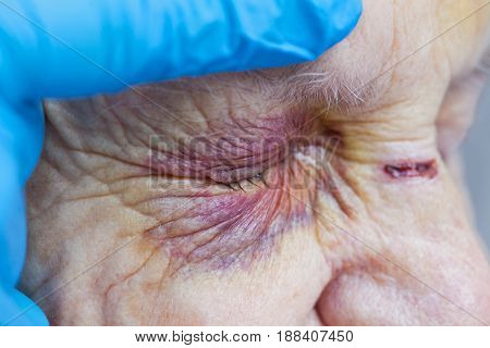 Close up picture of an elderly woman's injured eye and nurse's fingers