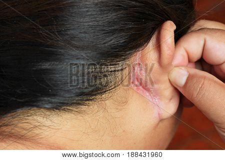wound behind ear , skin of ear