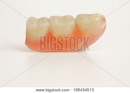 Three prosthetic teeth isolated on white background