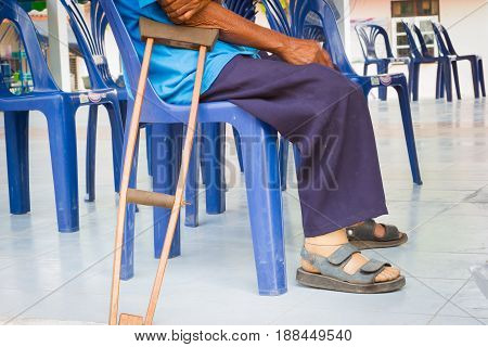 closeup a man suffering from leprosy with wooden crutch