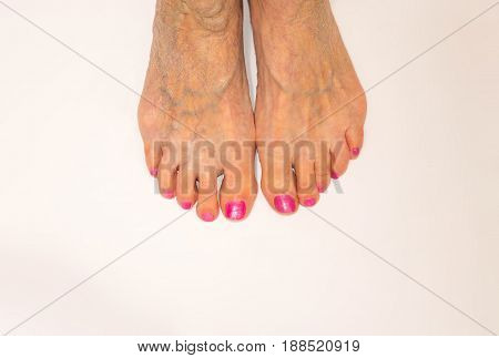 Varicose vein. Macro. The female legs isolated on white. Senior woman