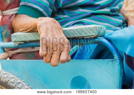 closeup hand of old man suffering from leprosy amputated hand on wheelchair