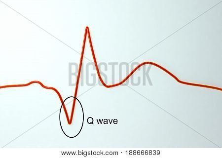 ECG in myocardial infarction. 3D illustration showing pathological Q wave, labeled image