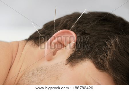 Man's ear with needles. Acupuncture concept