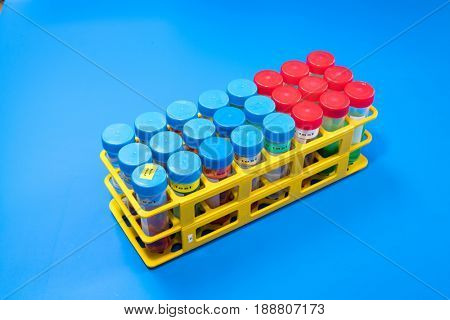 Plastic Thermo Scientific  Conical Bottom Centrifuge test tube in rack