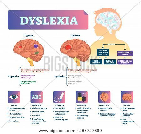 Dyslexia Vector Illustration. Labeled Medical Brain Illness Problem Scheme. Compared Normal And Brai