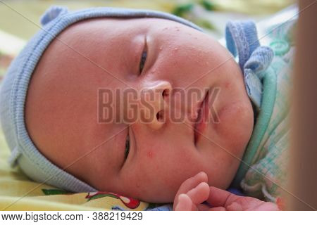 The Baby Is Lying With Pimples, The Baby Lies In A Cradle With Pimples And Sleeps