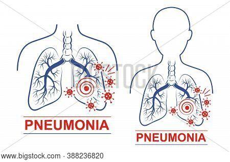 Pneumonia Disease Icon Set. Human Lungs And Trachea Anatomy. Treating For Pneumonia. Treatment For C