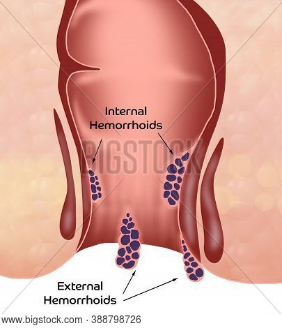 Hemorrhoid. Unhealthy Lower Rectum With Inflamed Vascular Structures, Illustration