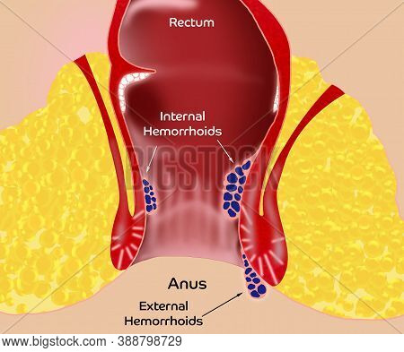 Hemorrhoid. Illustration Of Unhealthy Lower Rectum With Inflamed Vascular Structures