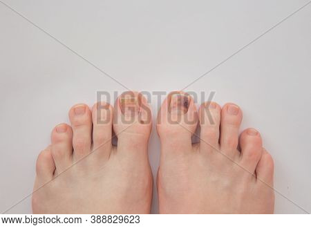 Toenails Damaged By Hematoma. Detachment Of The Nail, Blow To The Nail. Ingrown Nail. Nail Care Conc