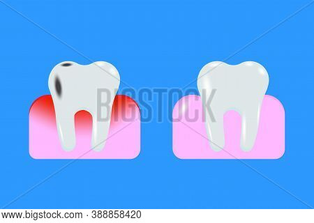 Cartoon Gum Tooth For Tissue Design. Food Hygiene. Illustration For Tissue Design. Teeth In The Gum.