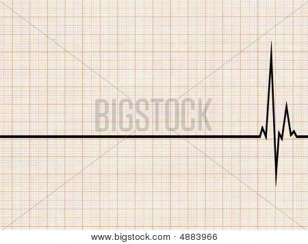 Cardiogram2