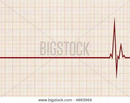 Cardiogramm1