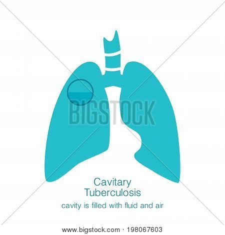 Vector silhouette medical illustration of human body organ - lungs with trachea. Logo template for clinic, hospital. Symbol for cavitary tuberculosis. Health care of respiratory system