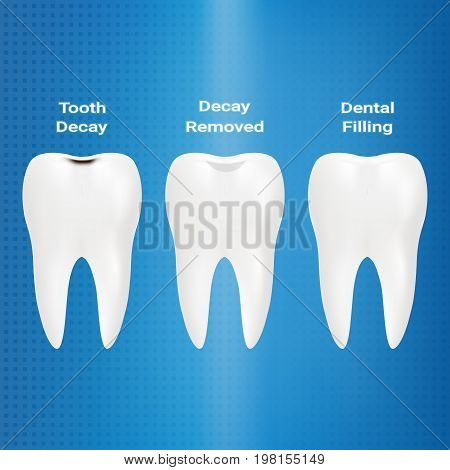 Treatment Of Caries. Dental Filling Isolated On A Background. Vector Illustration. Stomatology. Teeth And Tooth Concept Of Dental