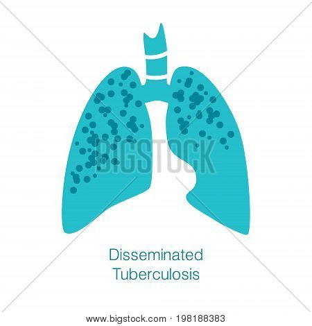 Vector silhouette medical illustration of human body organ - lungs with trachea. Logo template for clinic, hospital. Symbol for disseminated tuberculosis. Health care of respiratory system
