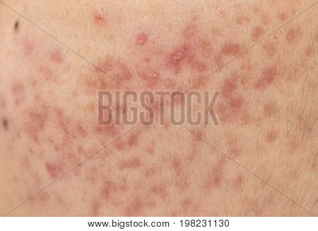 Acne on facial skin Dermatological disease acne poster