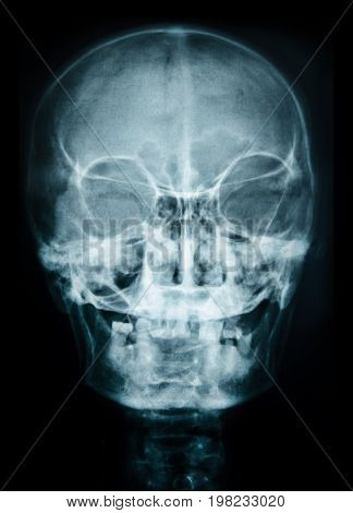 the image X ray of skull human.