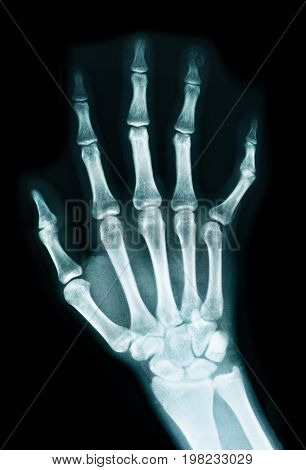 The image X-ray of a human hand