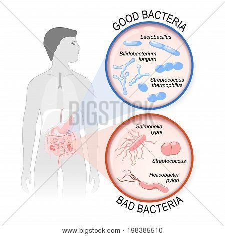 Probiotics. gut flora: Good (Lactobacillus Bifidobacterium longum Streptococcus thermophilus) and Bad (Streptococcus Salmonella typhi Helicobacter pylori) bacteria.