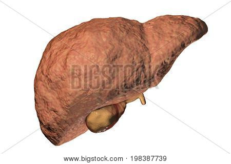 Fibrotic liver, a stage of liver pathology progression, 3D illustration