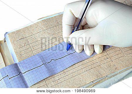 Hand cardiologist writes a diagnosis, cardiogram, Myocardial infarction