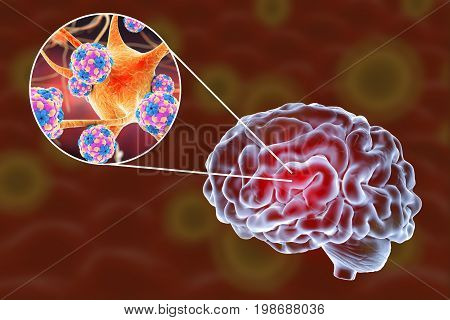 Viral encephalitis, 3D illustration showing brain and close-up view of viruses amd neurons