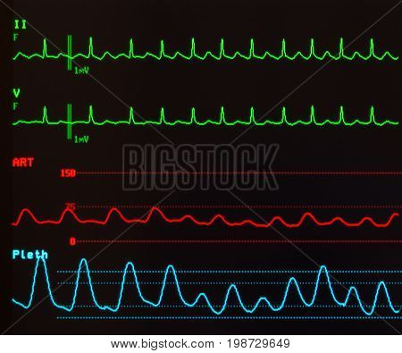 Close up of a monitor with black background showing atrial flutter with variable conduction on the green ECG lines, the arterial blood pressure in red and the oxygen saturation in blue.