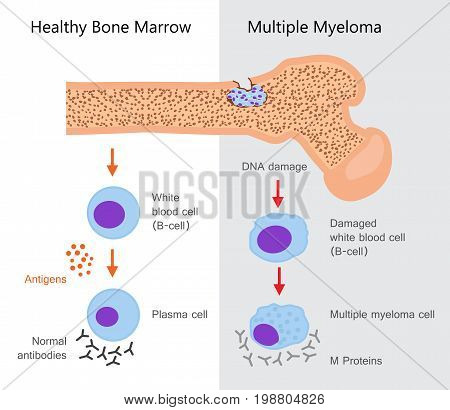 Multiple Myeloma Diagram. Vector illustration flat design poster