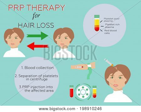 Platelet rich plasma injection. PRP therapy process. Female hair loss treatment infographics.