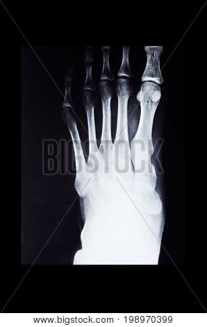 Fluorography of foot with deformation in black frame