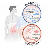 Probiotics. gut flora: Good (Lactobacillus Bifidobacterium longum Streptococcus thermophilus) and Bad (Streptococcus Salmonella typhi Helicobacter pylori) bacteria. poster