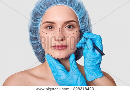 Beautiful Woman Has Marked Arrows Under Eyes. Lady Wants To Improve Her Appearance. Plastic Surgeon