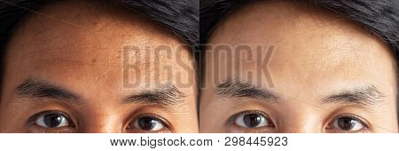 Two Pictures Compared Effect Before And After Treatment. Skin With Problems Of Freckles , Pore , Dul