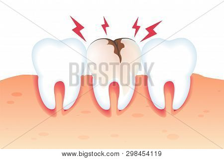 Pain in Broken Tooth Illustration Realistic 3d. Special Assistance in Maintaining Oral Hygiene. Closeup Healthy White Teeth and Tooth Need Repair. Vector Flat. Dental Diseases and Pain. poster