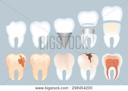 Realistic Tooth Structure Vector Illustration. Close-up Structure Teeth. Healthy Natural Tooth And I