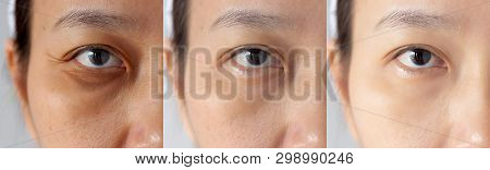 Three Pictures Compared Effect Before And After Treatment. Under Eyes With Problems Of Dark Circles